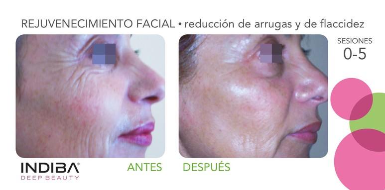 indiba-facial