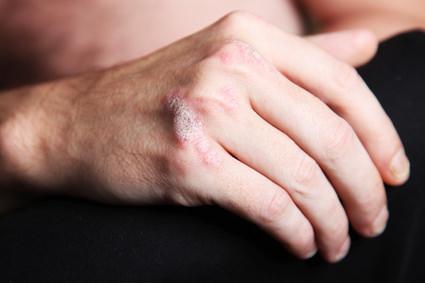 Cáncer de piel y psoriasis