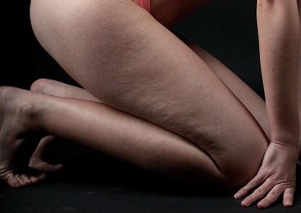 Celulitis en pierna